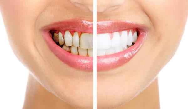 Зубной камень – вред для десен и эмали и неэстетичная улыбка