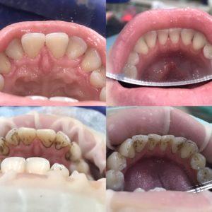 уз чистка зубов