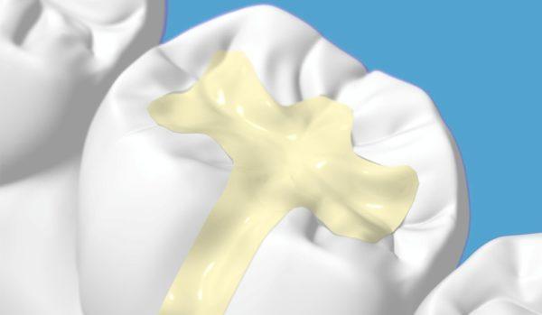 Пломба – лечение и восстановление целостности зуба