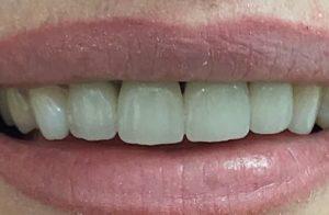 коронка на зубах