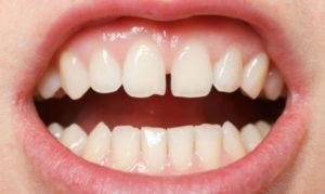 скол зуба