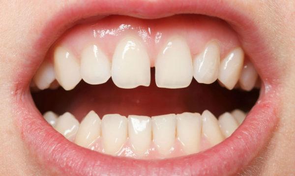 Сколы зубов и их виды