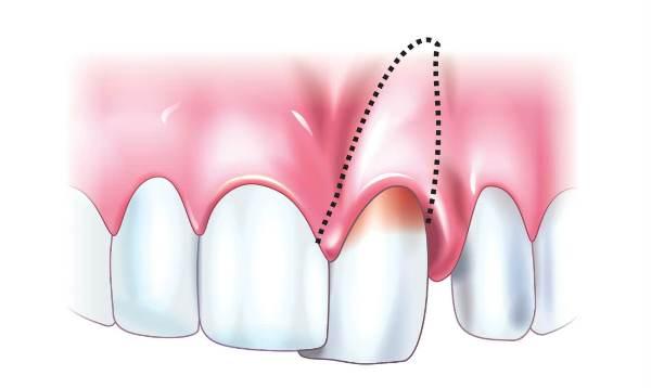 Replantatciia-zuba