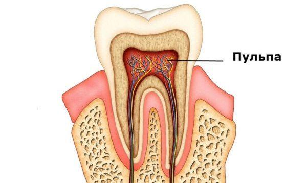Удаление нерва зуба. Без боли и осложнений