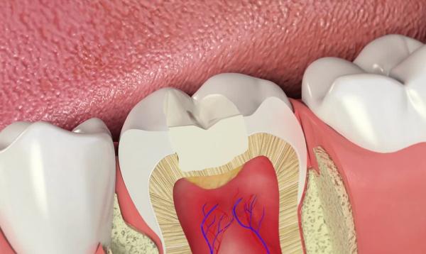 Пломбирование зубов и их классификация