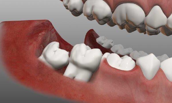 Дистопированный зуб мудрости: что это такое