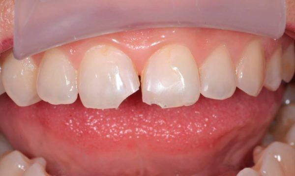 Как устранить скол зуба и причины возникновения повреждения