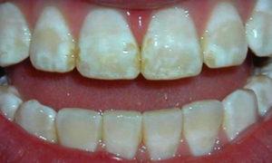 кариес эмали зубов