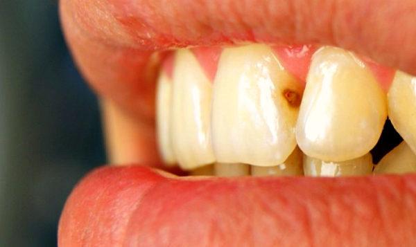 Особенности и методы лечение передних зубов