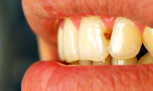 lechenie_perednih_zubov