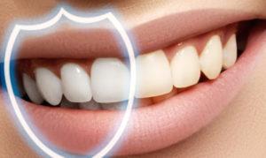 восстановление эмали зуба
