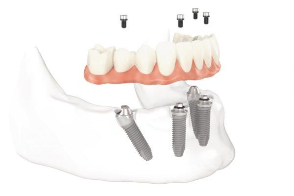 protez-na-implante