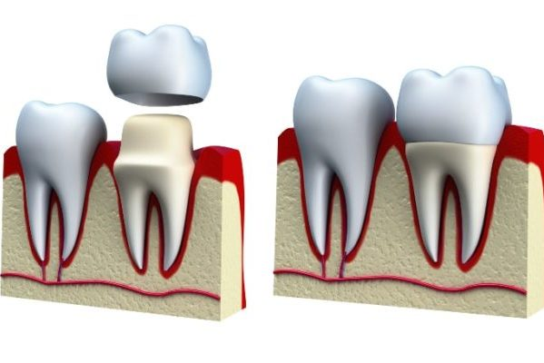 Методы восстановления зубов в современной клинике