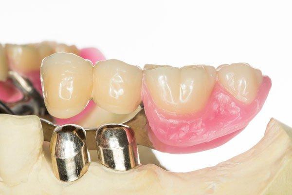 Доступная имплантация зубов и  бюджетное протезирование – востребованные в настоящее время услуги