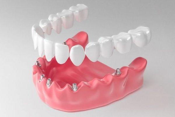 Несъемное протезирование зубов и его основные виды