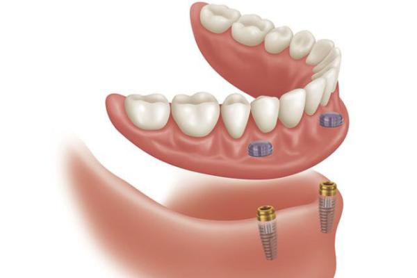Имплантация all-on-2 – бюджетный и эффективный метод восстановления зубов