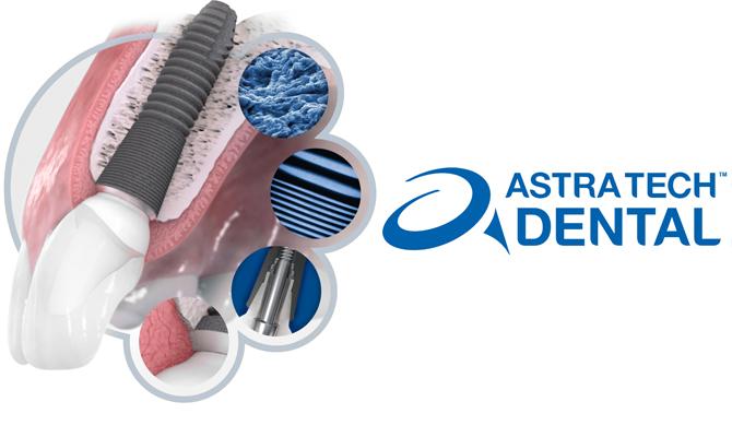 Имплантационная система Astra Tech