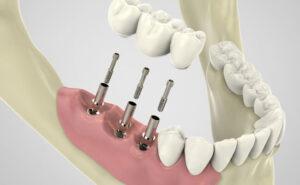 имплантация на протезах